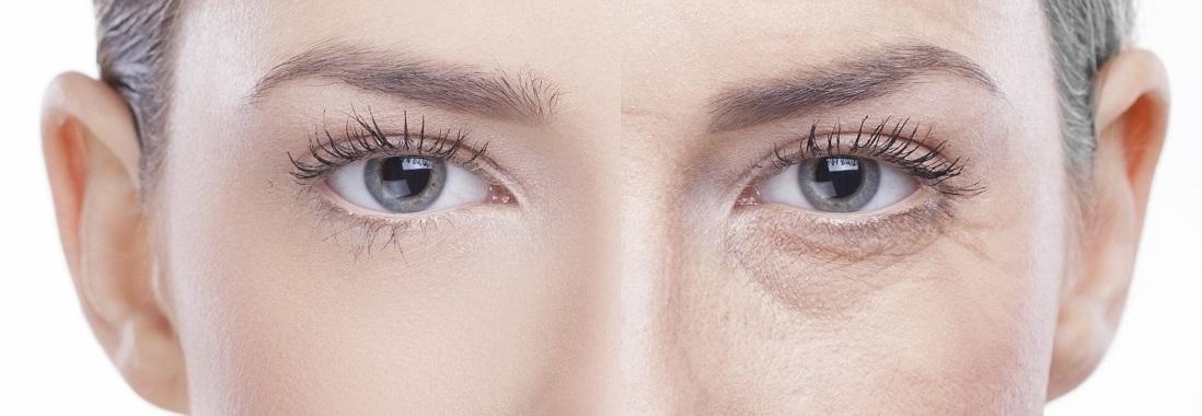 donna, rughe, età, occhi, sguardo, invecchiamento, antiage, trattamento, crema