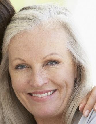 donna, sorriso, occhi, pelle, dermatologia, rughe, espressione, viso, volto, 60 anni