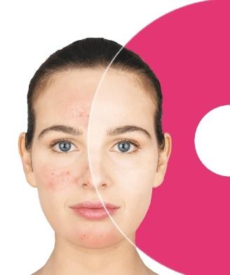 donna, viso, volto, rosacea, rossore, guance, zigomi, pelle, dermatologia, infiammazione, crema, eutrosis ar, difa cooper, cantabria labs